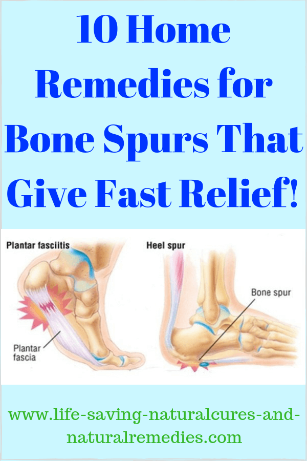d0a125e463 10 Sure-Fire Ways to Get Rid of Bone Spurs Naturally at Home!