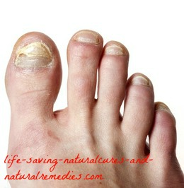 12 Home Remedies for Toenail Fungus That Give Amazing Results!
