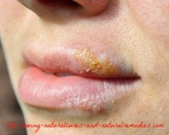 Natural herpes cure for HSV1 and HSV2