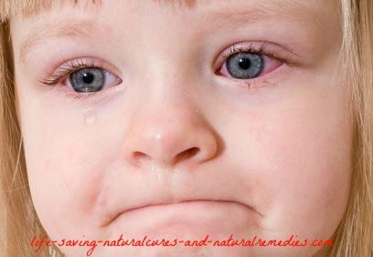 Best pink eye conjunctivitis remedies