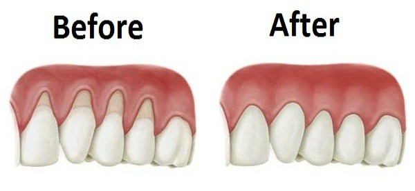 how to make your gums strongr