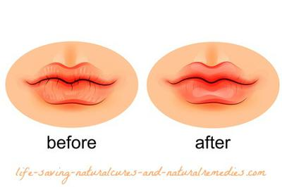 Natural Remedies For Dry Cracked Lips