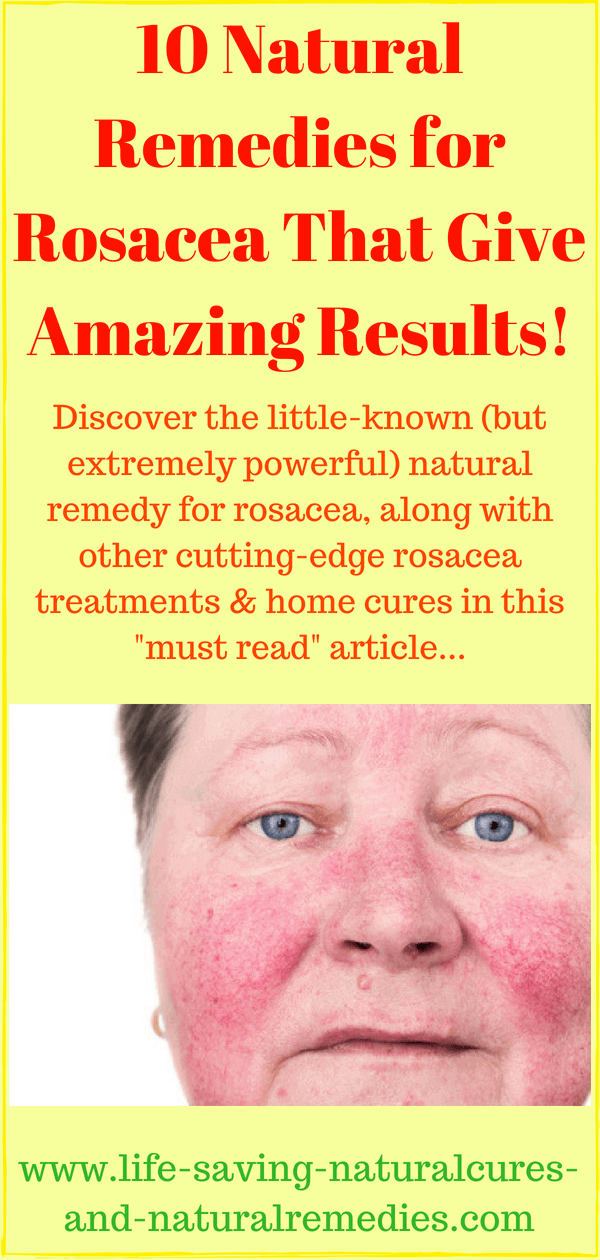A Natural Remedy For Rosacea That Gives Stunning Results