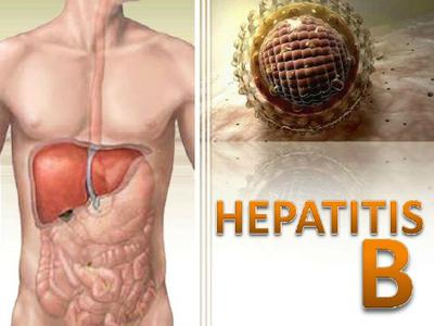 Natural Remedies For Hepatitis C