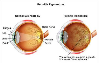 A Powerful Natural Remedy For Retinitis Pigmentosa