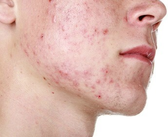 Best natural home remedies for acne and pimples