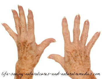 Best natural home remedies for age spots and liver spots