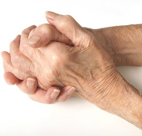 best natural treatments and home remedies for arthritis