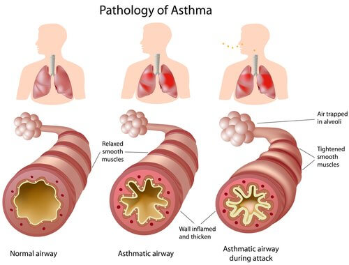 Asthma relief remedies that work fast