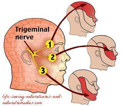 Vagus Nerve Natural Remedies