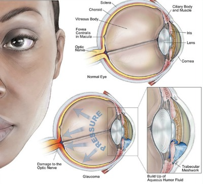 Natural Remedy For Glaucoma Pressure