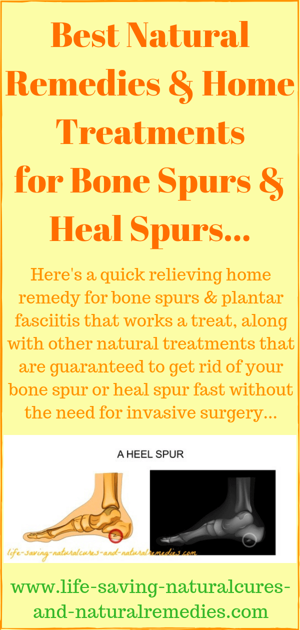 Bone spurs heal spurs home remedies