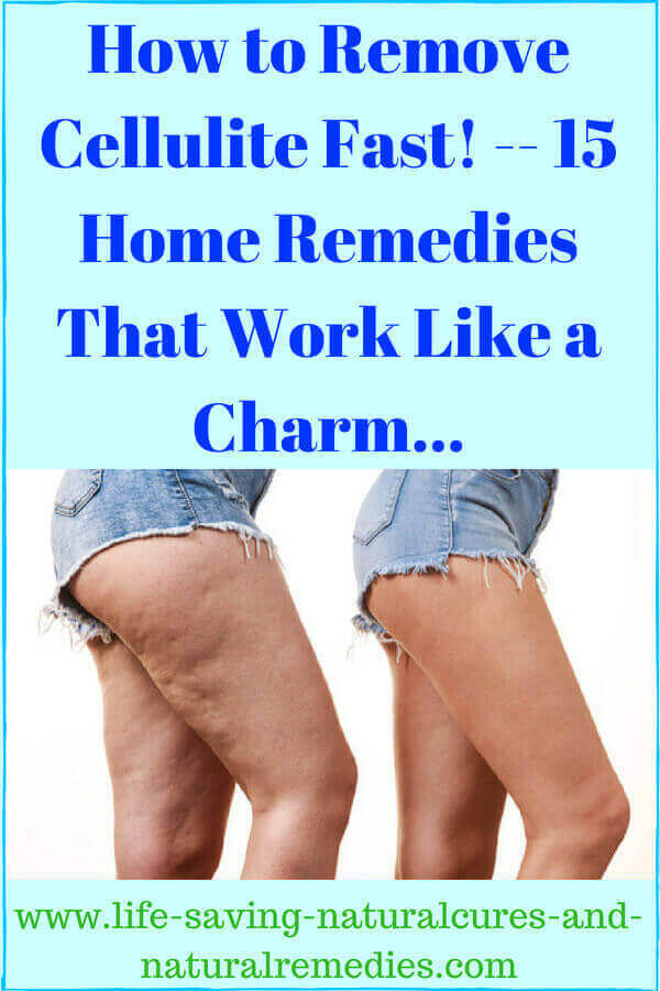 At Last 15 Proven Home Remedies For Quick Cellulite Removal