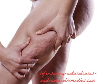 at last! 15 proven home remedies for quick cellulite removal