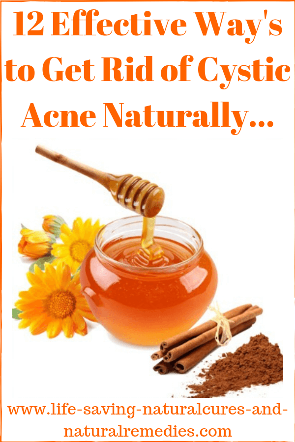 Wow! 12 Impressive Home Remedies for Cystic Acne