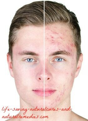 Best natural home remedies for cystic acne