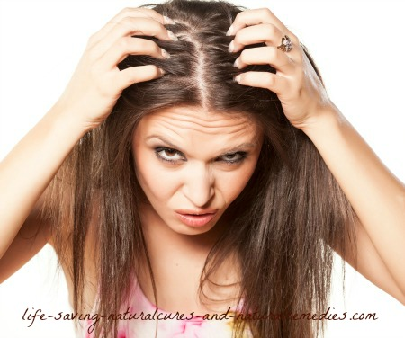 Natural remedies and home treatments for dandruff