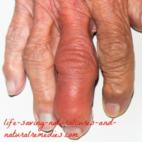 Wow! Home Remedies for Gout Exciting Breakthrough!