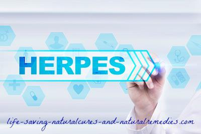 How I Successfully Treated & Cured My Herpes