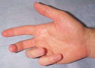 Natural Treatment For Numbness In Hands