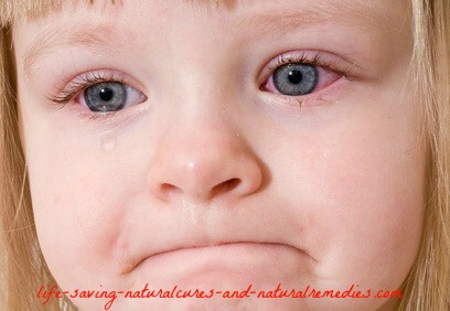 Best pink eye conjunctivitis remedies