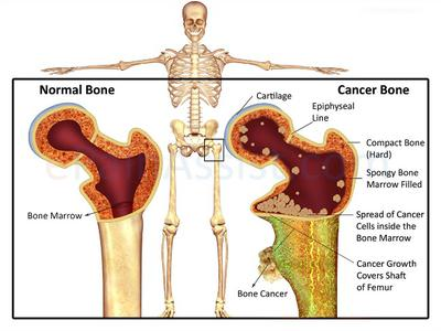 Bone Cancer Natural Treatment
