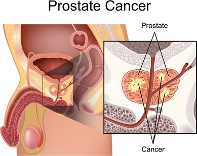 Natural Cures for Prostate Cancer That Get Powerful Results
