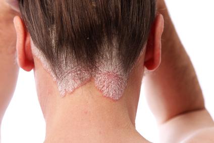 Home Remedies for Psoriasis and Eczema - Essential Fatty Acids