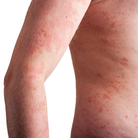 Foods for Treating Psoriasis and Eczema