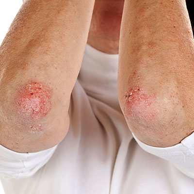 At Last Home Remedies For Psoriasis That Work Quot Big Time Quot