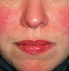 Rosacea natural remedies