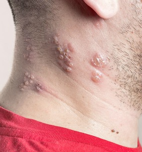 Natural Remedies For Shingles Outbreak