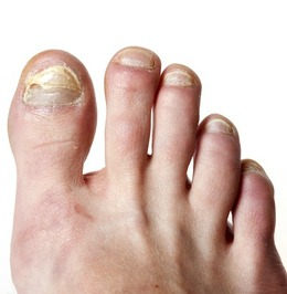 Best home remedies for removing nail fungus