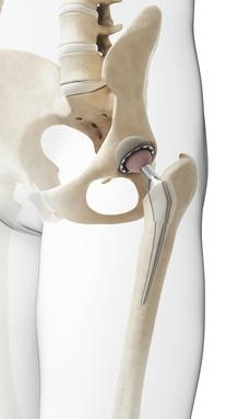 powerful arthritis cure