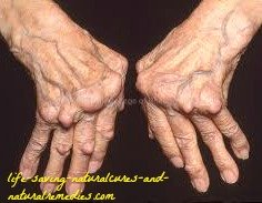 natural arthritis cure