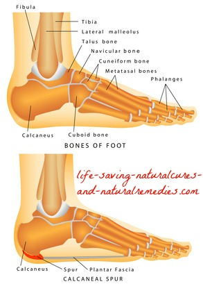 Best home remedies for dissolving bone spurs and heal spurs