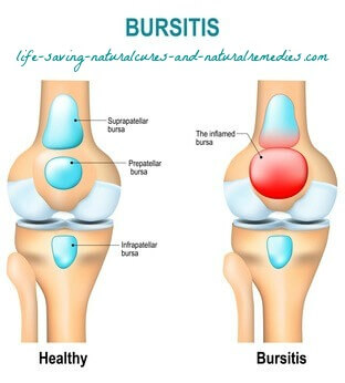 Best natural home remedies for bursitis