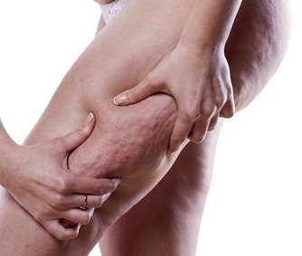 Best home remedies for quick cellulite removal