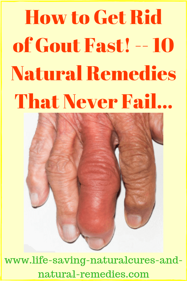 Home Remedies for Gout Best