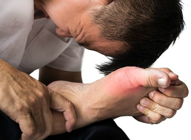 Best Gout and Gouty Arthritis Remedies