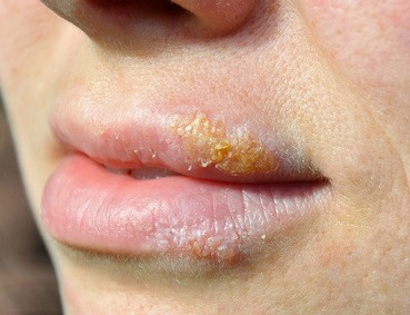 Natural herpes treatment for HSV1 and HSV2