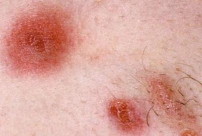 Natural Cures For Mrsa Staph Infections