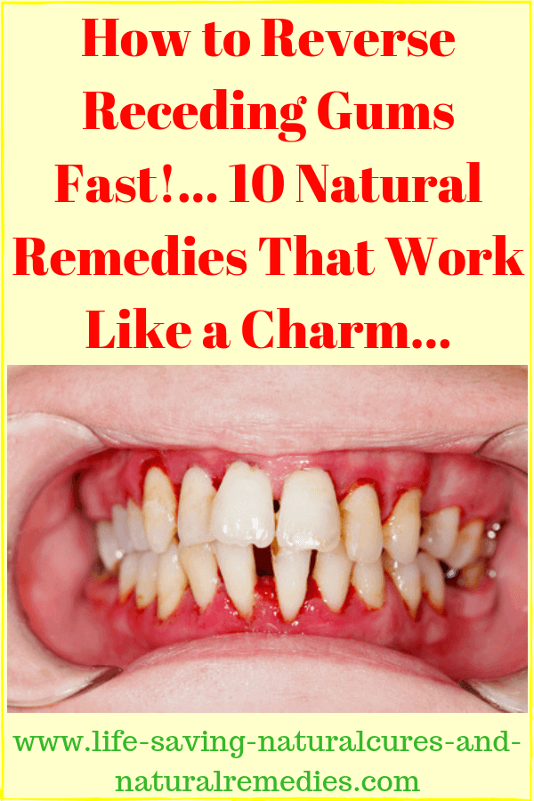 Wow 8 Stunning Natural Remedies For Receding Gums